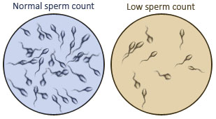 count lower sperm Will caffiene